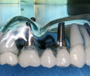 dental implants everything you need to know